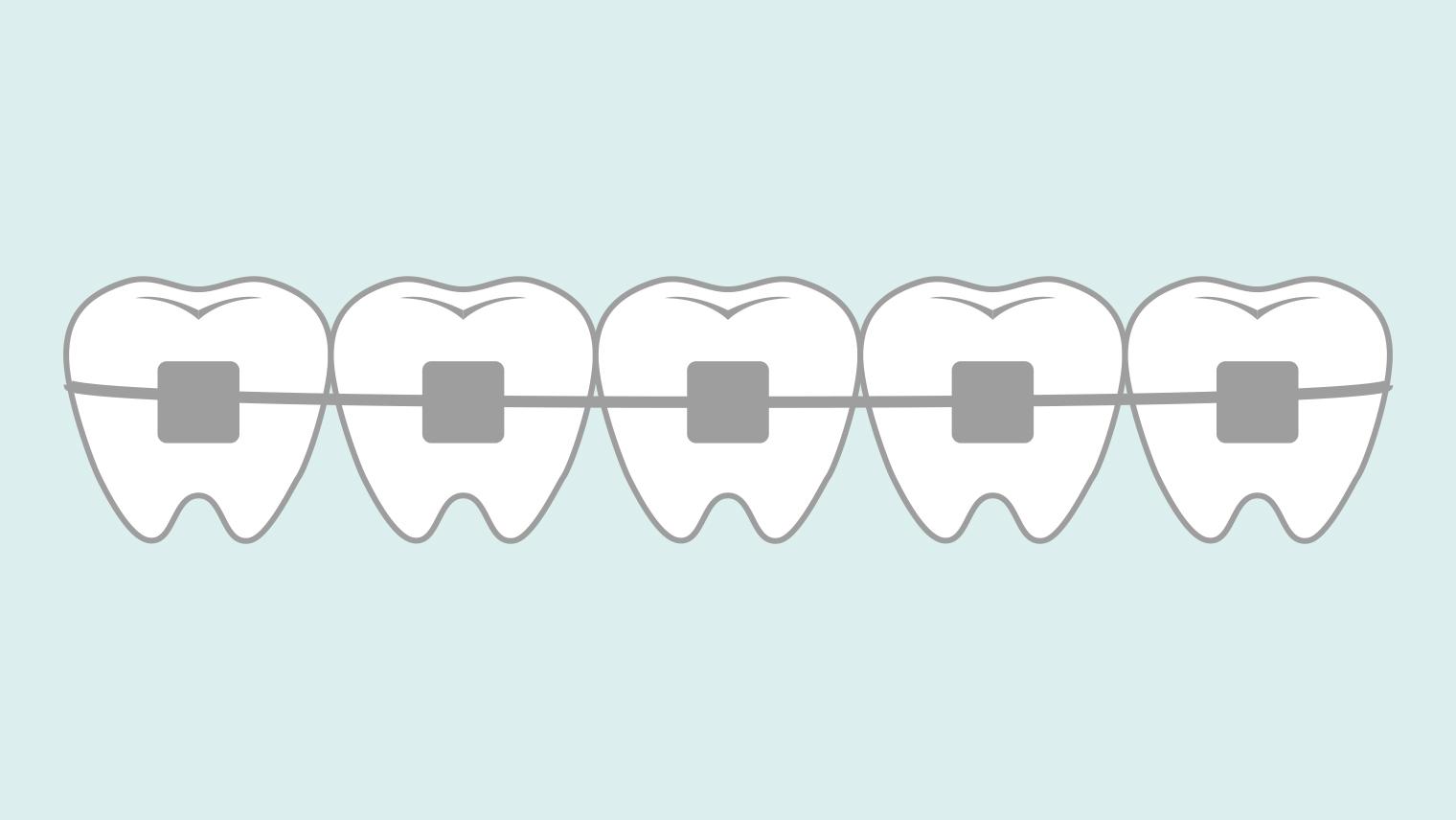 お子さんの歯の矯正前に知っておくと良いこと5つ